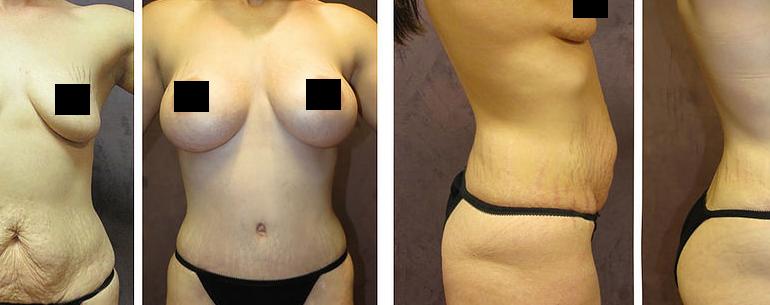 Shanna avant et après